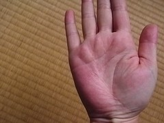掌蹠膿疱症ビオチン効果の手100410