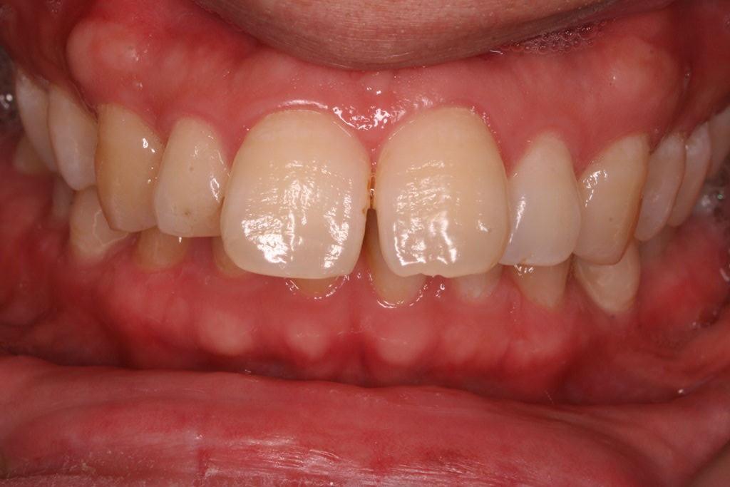 プロ先生の歯列矯正日記  乳歯が残っていて永久歯が無いなどといった症例の対応についてコメントトラックバック