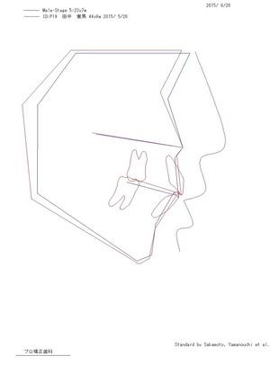 プロフィログラム