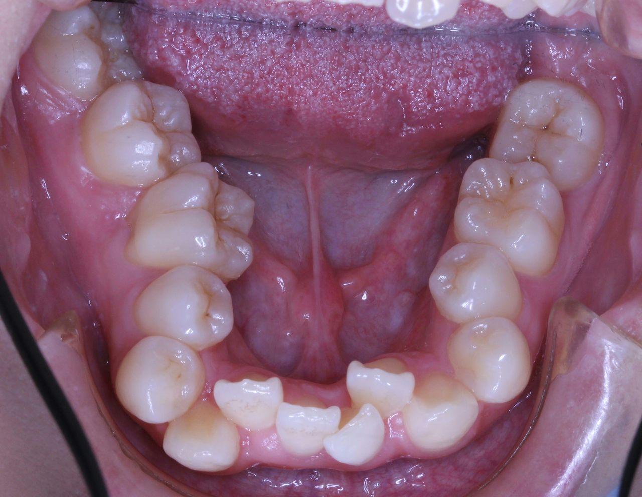 そのまま 奥歯 抜歯