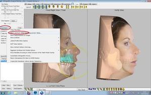 3D Surgery-骨片移動