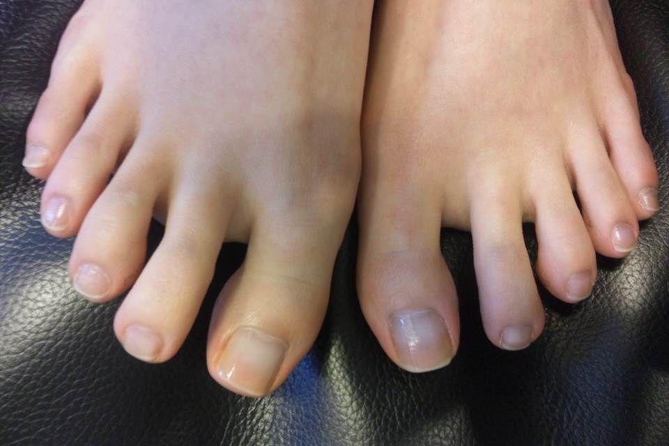 足の爪が伸びない!?栄養不足や冷え、圧迫など理由は様々 からきゅれ 健康・病気・美容の情報まとめ