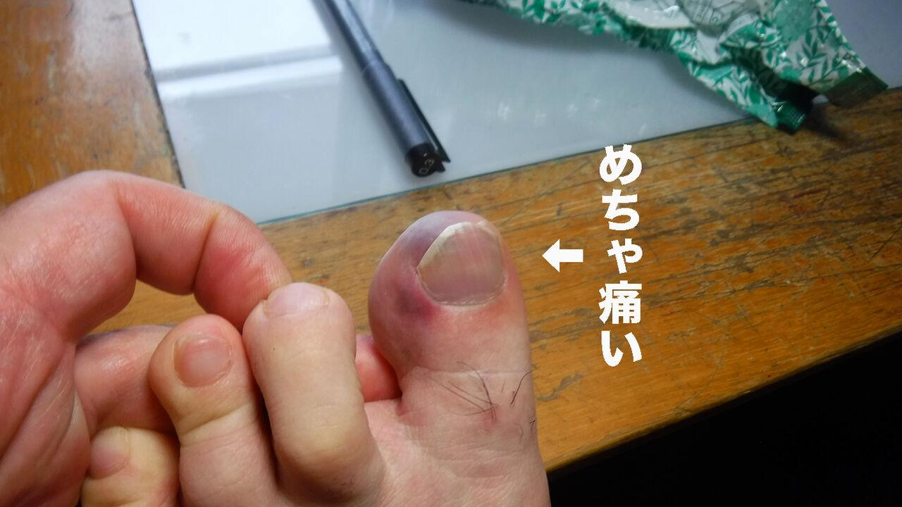 ジンジン 痛い が 足