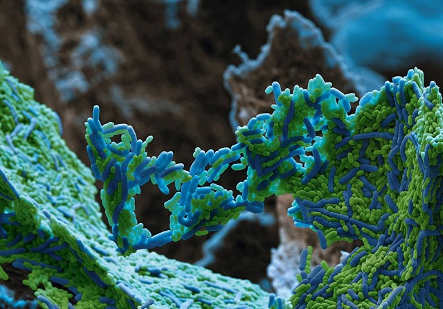 electron microscope image Streptococcus mutans