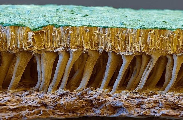 electron microscope image soybean