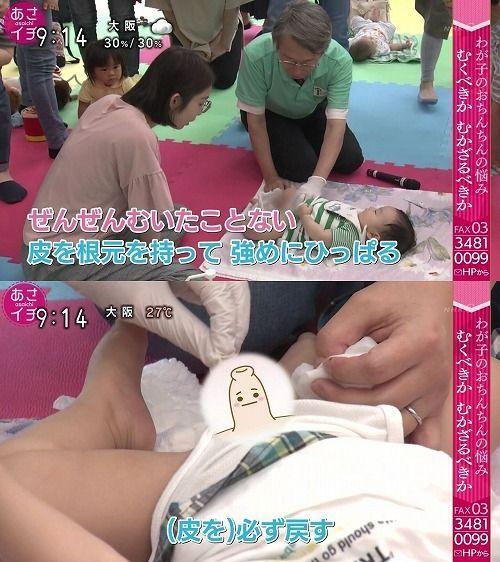 赤ちゃん ちんちん むく むきむき体操とは?男の子の赤ちゃんは皮をむくべき?やり方は?