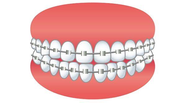 女性「どうして日本人は歯の矯正をしないの?こんなに顔の印象が変わるのに」