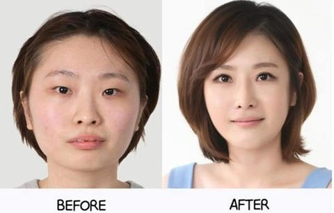 plastic-surgery-in-korea-6