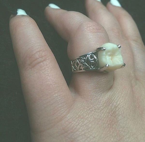 ダイヤモンドより価値がある?親知らずを婚約指輪にしたカップル (5)