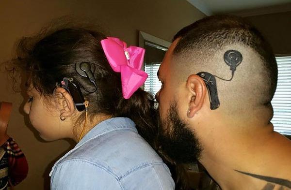 補聴器インプラントのタトゥー