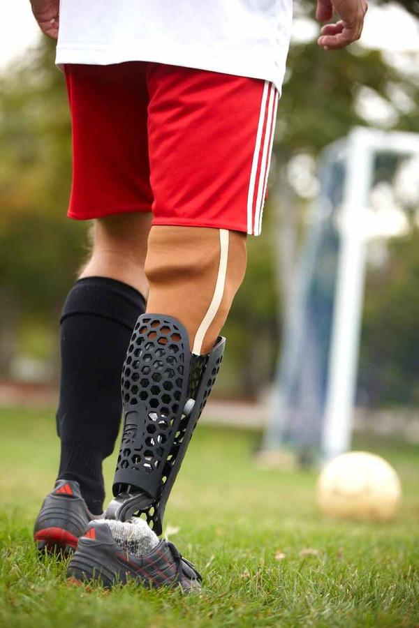 クールなデザインの義足・義肢 Scott-Stummit 5