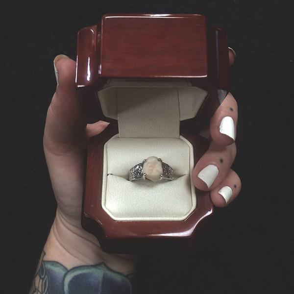 ダイヤモンドより価値がある?親知らずを婚約指輪にしたカップル (1)