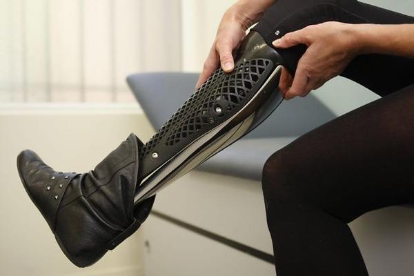 クールなデザインの義足・義肢 Scott-Stummit 15