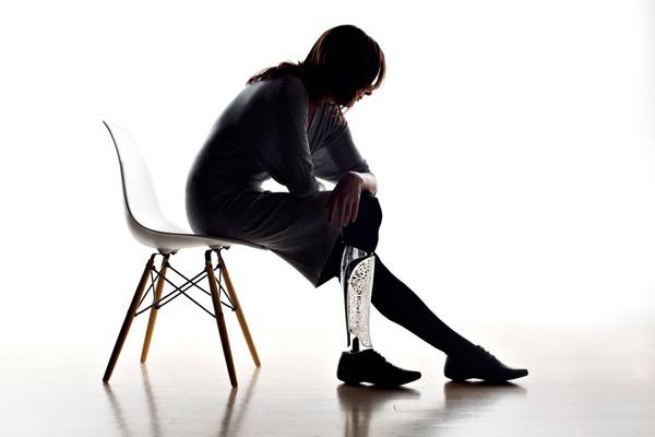 クールなデザインの義足・義肢 Scott-Stummit 12