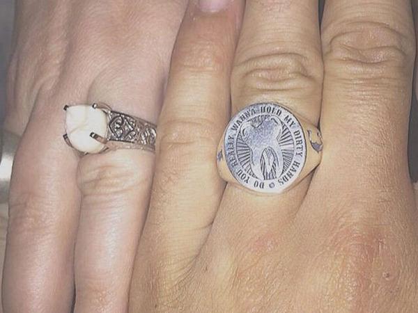ダイヤモンドより価値がある?親知らずを婚約指輪にしたカップル (6)