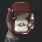 ダイヤモンドより価値がある?親知らずを婚約指輪にしたカップル
