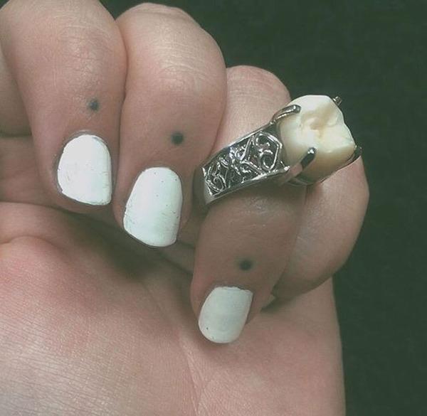 ダイヤモンドより価値がある?親知らずを婚約指輪にしたカップル (2)