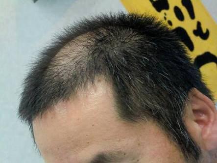 【画像】ハゲが角刈りにした結果wwwwwwwwwwwww