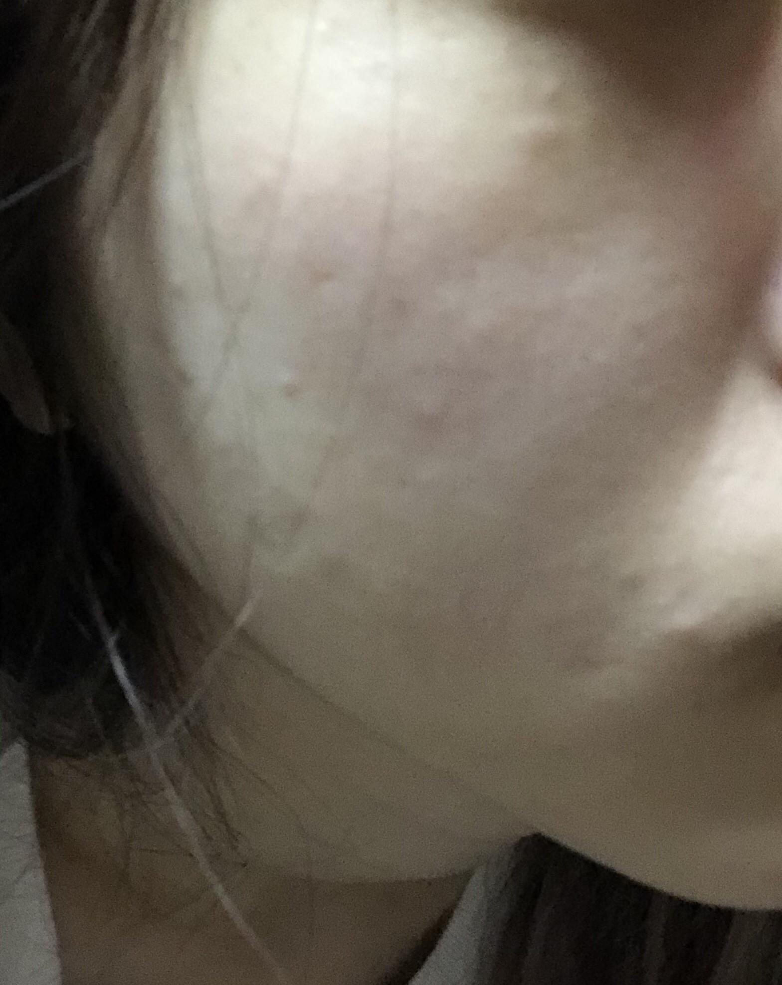 【画像】女だけど肌の綺麗度評価してくれwwwwwwwwww