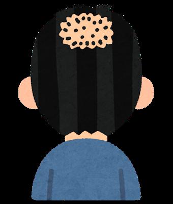 【悲報】白石麻衣さん(26)頭頂部の生え際がヤバい (※画像あり)