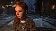 Dragon's Dogma_ Dark Arisen スクリーンショット__28