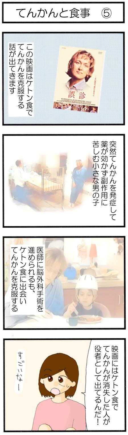 てんかん4