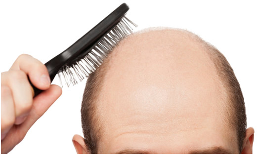 treat-baldness-naturally