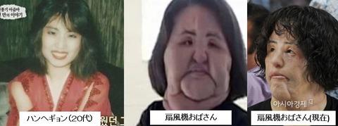 韓国女性、10人中4人は美容施術の経験有り