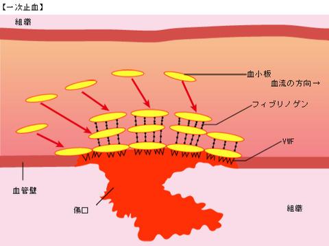 hemophilia_08_con02_01
