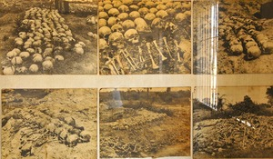 キリングフィールドで掘り出された虐殺の犠牲者たちの遺骨