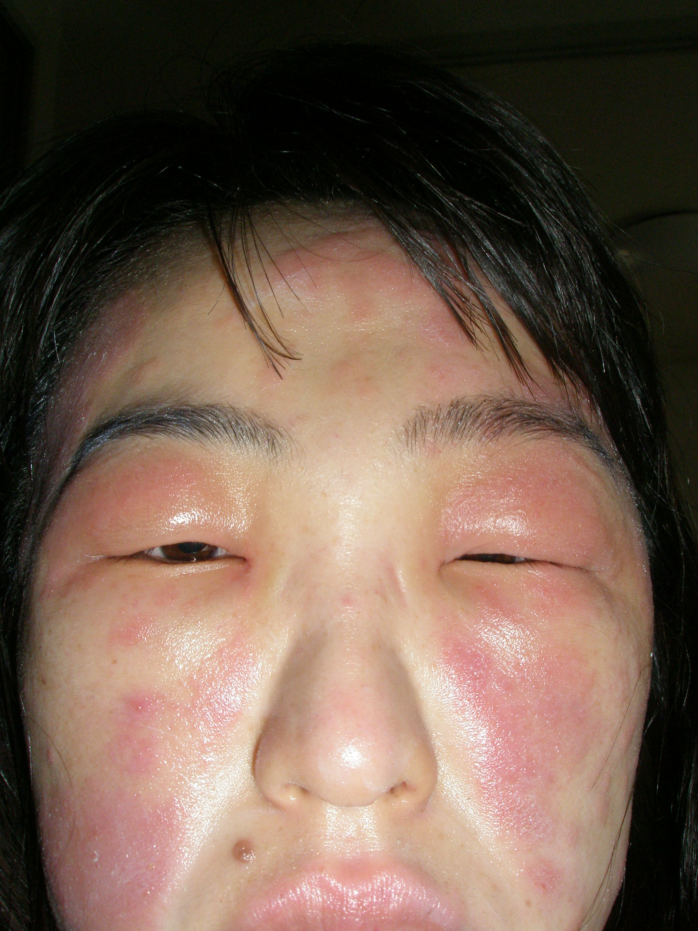 は コリン と 蕁 性 麻疹