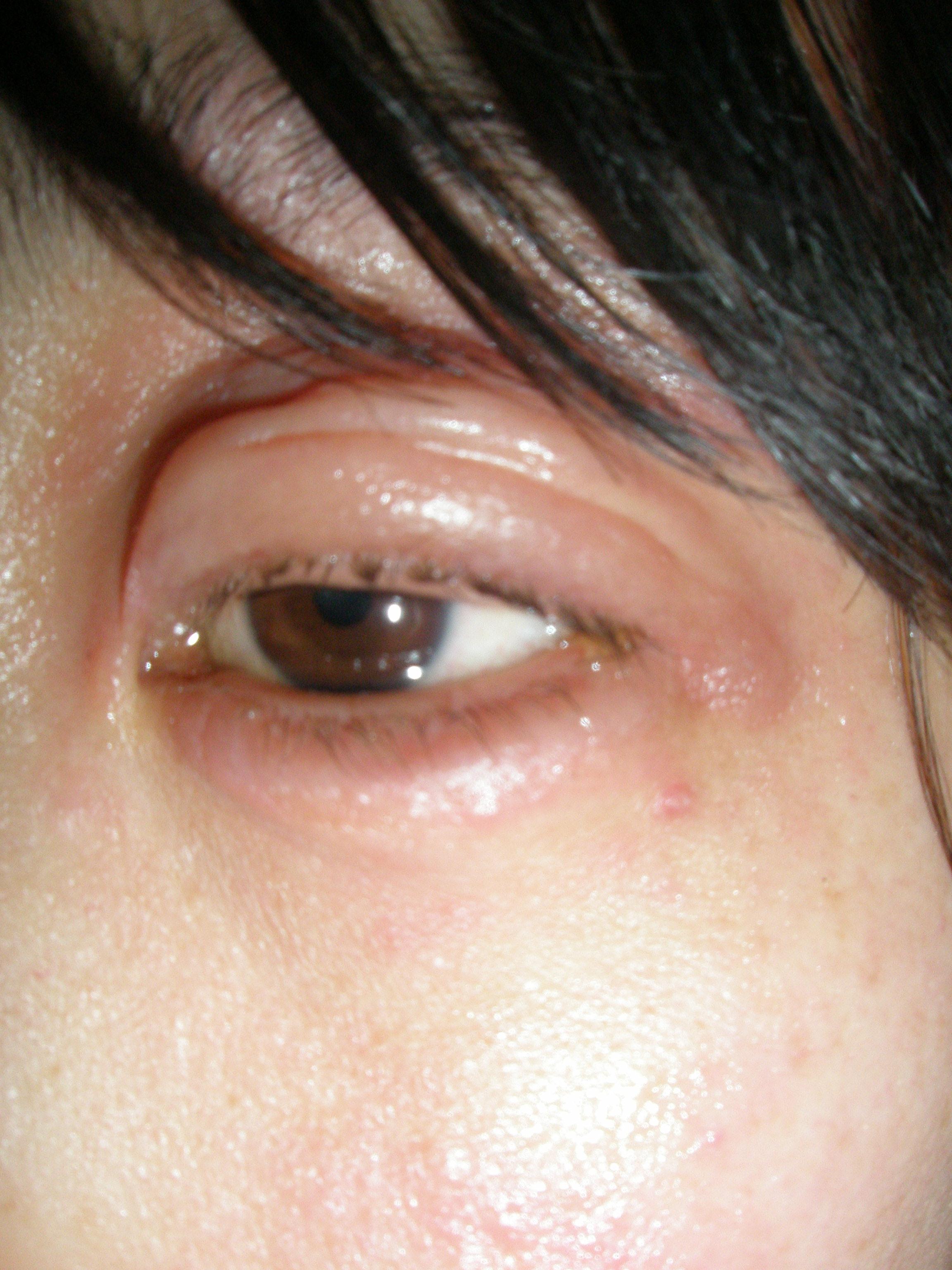蕁 画像 ストレス 麻疹