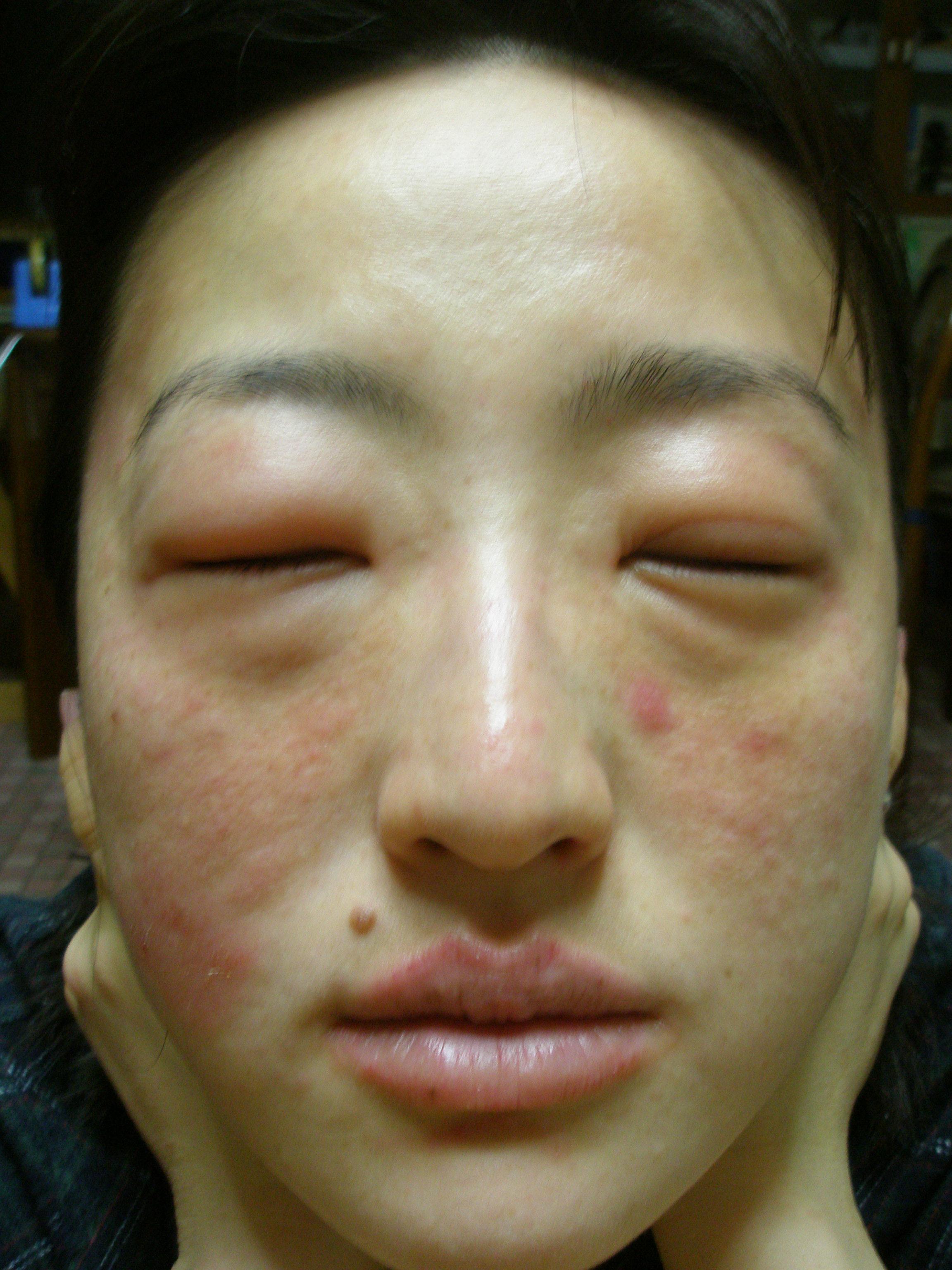 辛い コリン性蕁麻疹