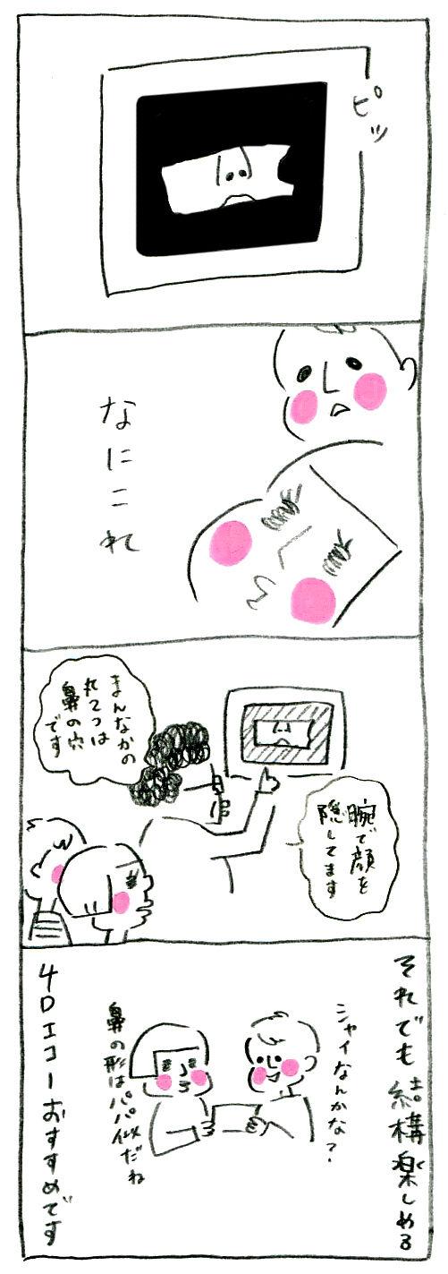 【妊娠日記34】4Dエコー2
