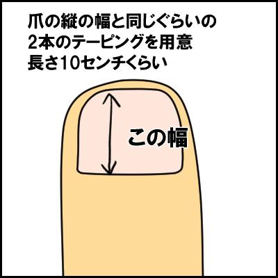 tume9