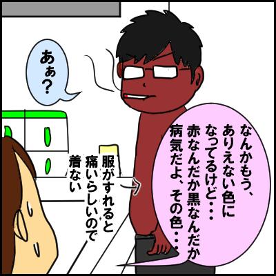hiyake1