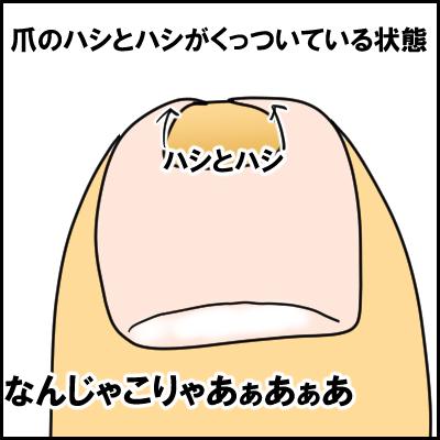 tume1