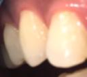 歯のホワイトニング②