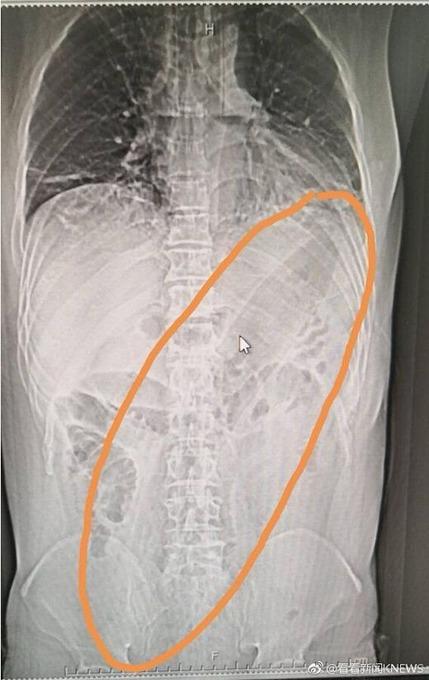 「巨大ナス」を肛門へ挿入 肺に達し損傷、緊急手術