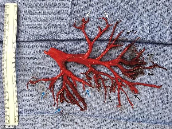 【画像あり】アメリカ人、口から気管支樹の形をした血の塊が飛び出す
