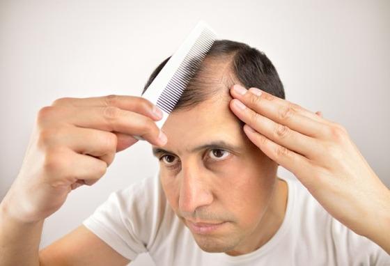 年をとると髪が成長しなくなる理由が判明 もしかしたら副作用のない発毛剤が開発できるかも