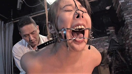 川崎紀里恵にホワイトヘッド開口器