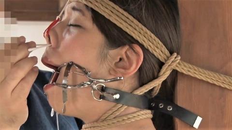 藍川美夏がホワイトヘッド開口器でヨダレ