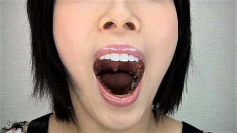 女性ののどちんこと口腔内