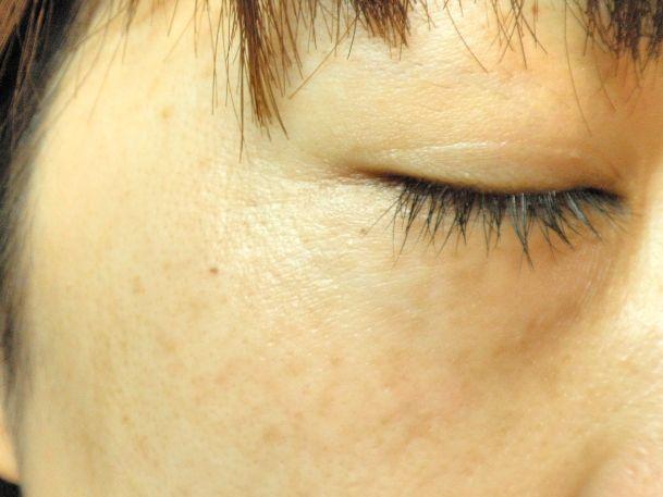 顔 の シミ を 消 したい 顔のシミを消す方法|顔のシミを消したい方必見!自宅や皮膚科ででき...
