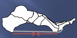 第3回 足底筋膜の機能と足底筋膜炎の対処法 - YouTube (1)