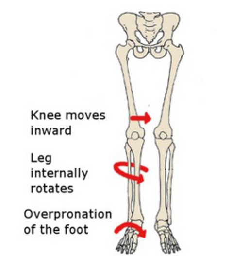 Hip Weakness and Flat Feet (2)