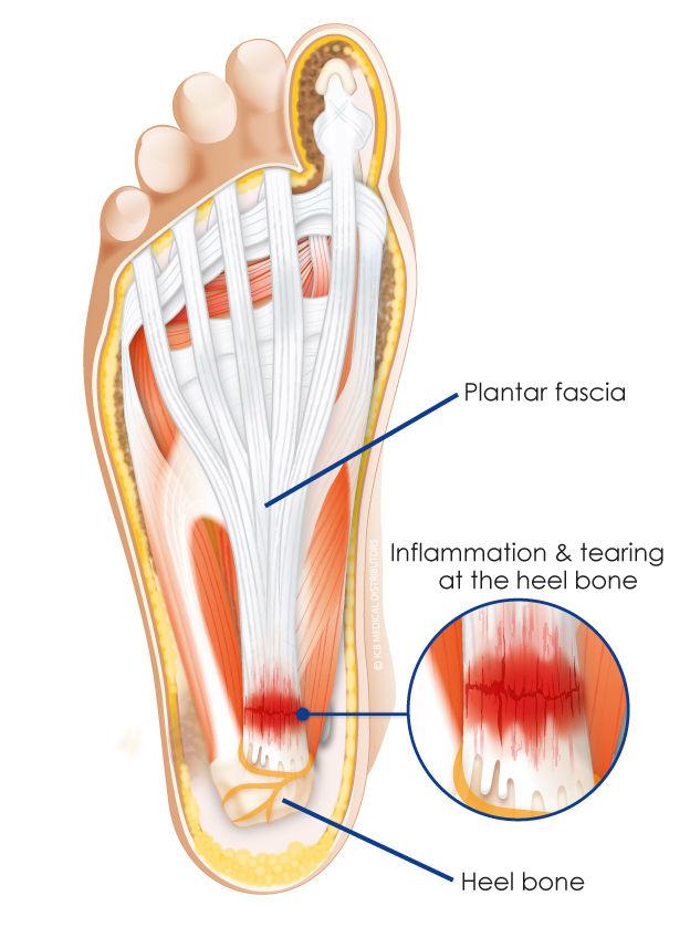の 裏 足 痛み ランニング