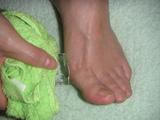 外反母趾のアイシング