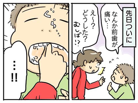 そうまの乳歯3